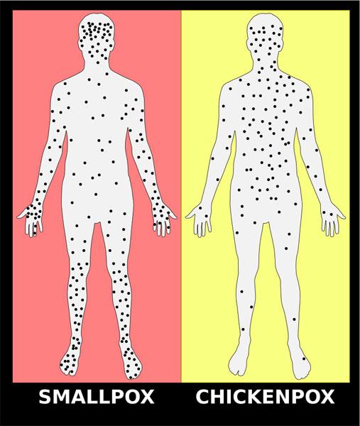 800px-Smallpox_versus_chickenpox_english_plain_svg copy KLS edited