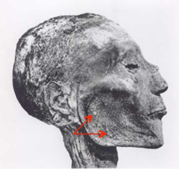 King-Ramses-KLS-edited