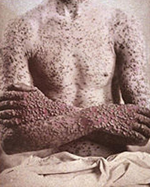 Smallpox KLS edited