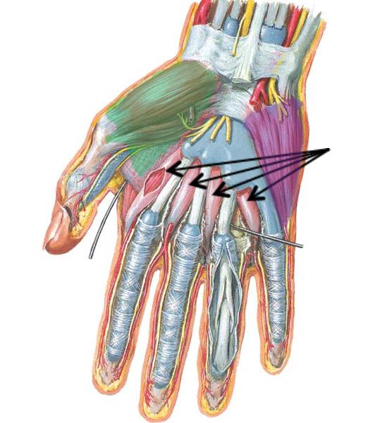 Figure0443B Intrinsic Hand Muscles KLS Edited