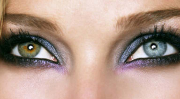 heterochromia-KLS-edited