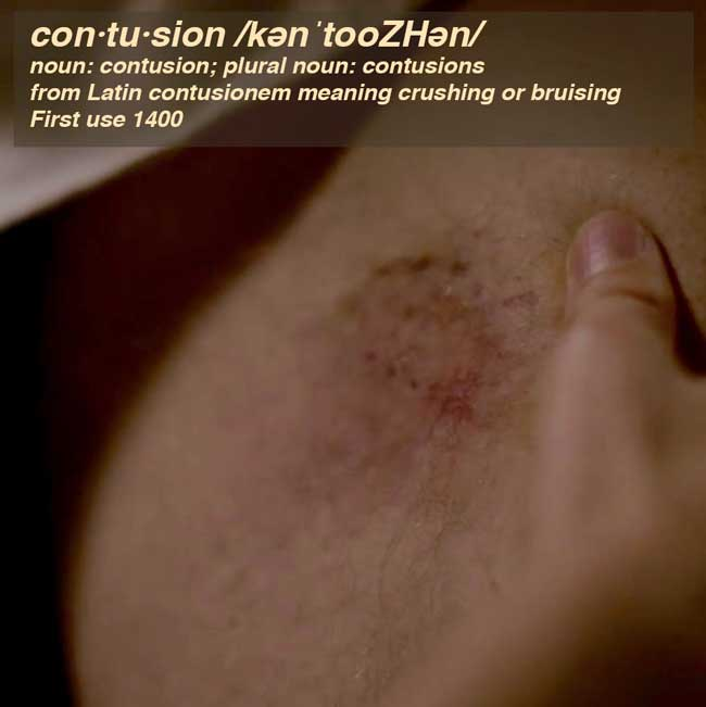 Hickie Outlander Anatomy