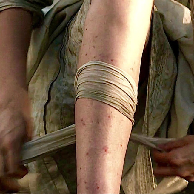 ant bites on Claire Fraser's leg from Outlander TV show